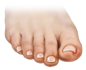 Suffering from an ingrown toenail?